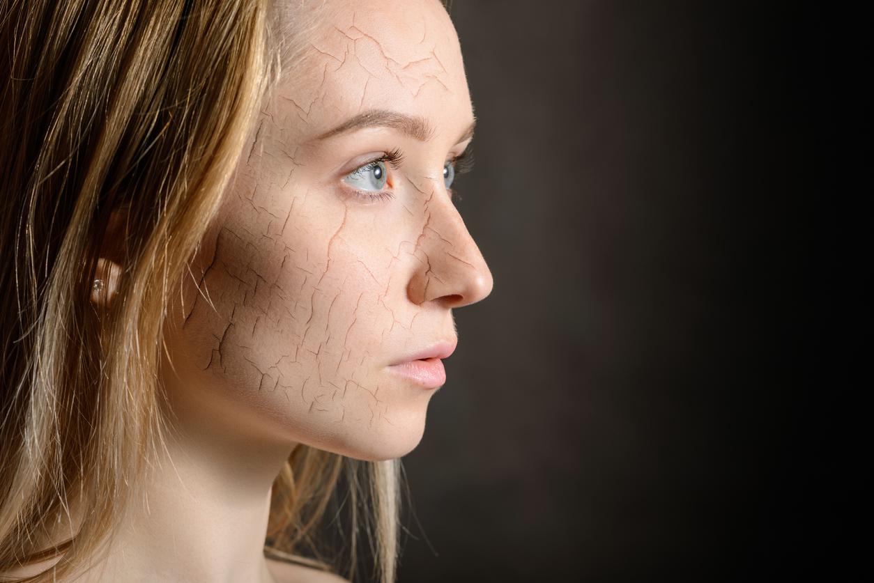 Pelle secca del viso, quali sono i rimedi