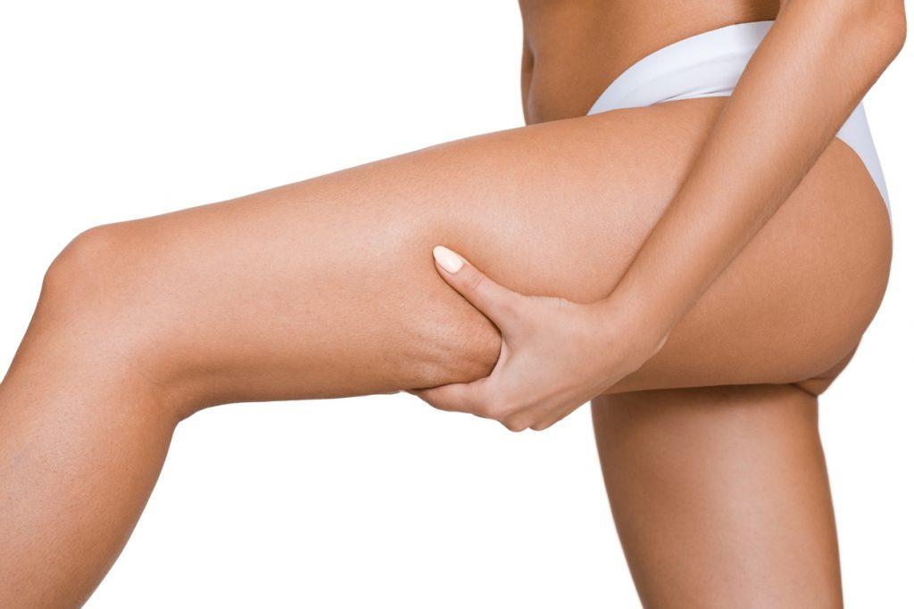 La pressoterapia funziona veramente per la cellulite?