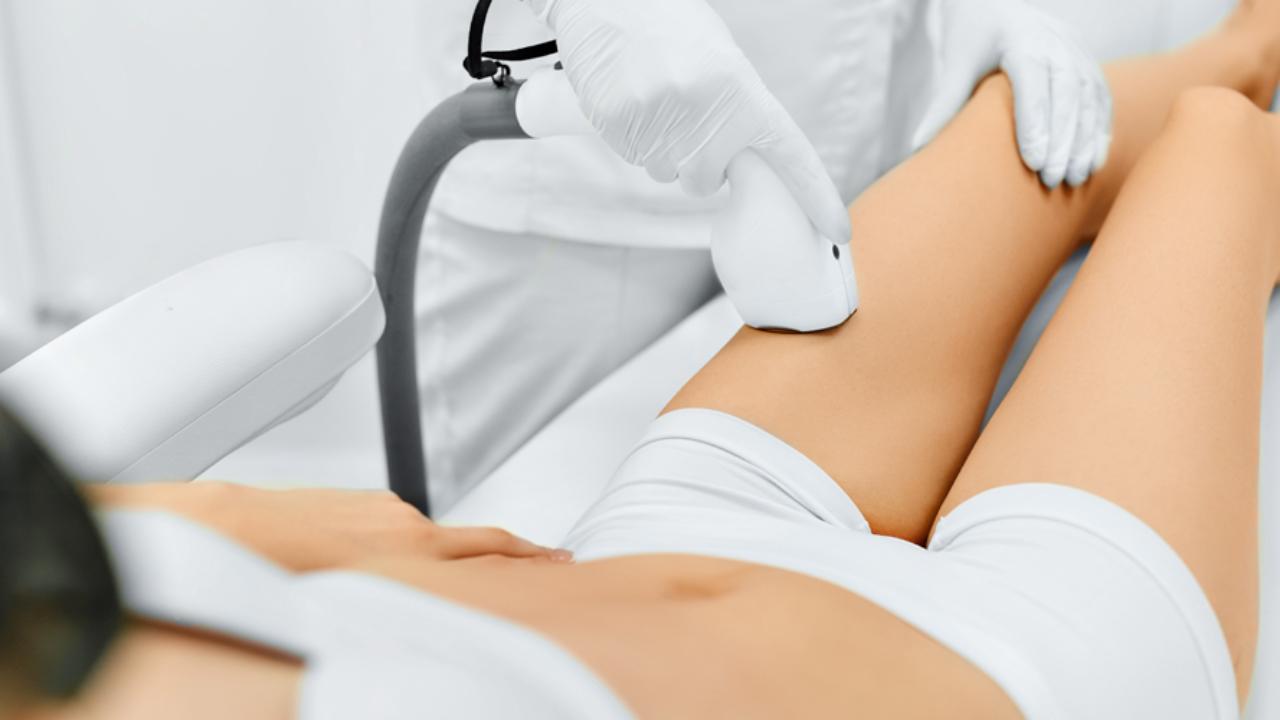 Approfondimento sull'epilazione laser e su tutti i suoi vantaggi